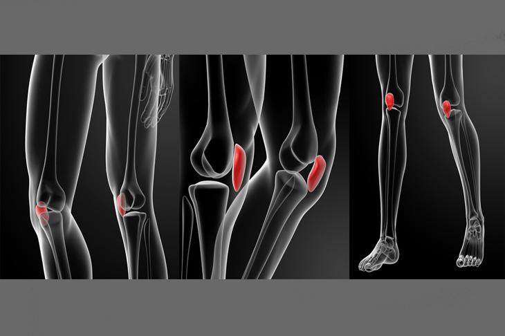 Diagnosticar una rotura de menisco